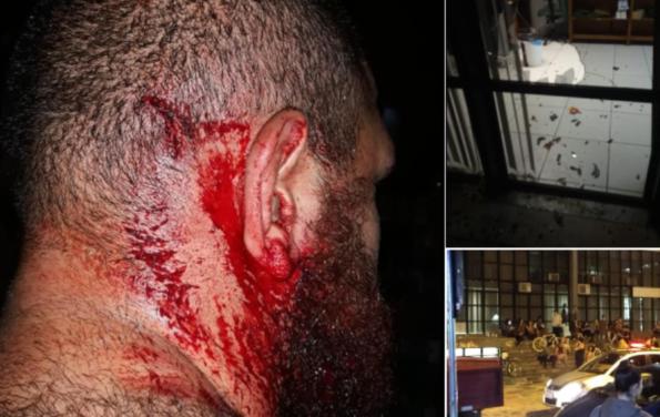 """Estudante da UFPR foi agredido por seis integrantes da torcida organizada do Coritiba. No final eles gritavam: """"Aqui é Bolsonaro"""" e """"Bolsonaro 2018"""""""